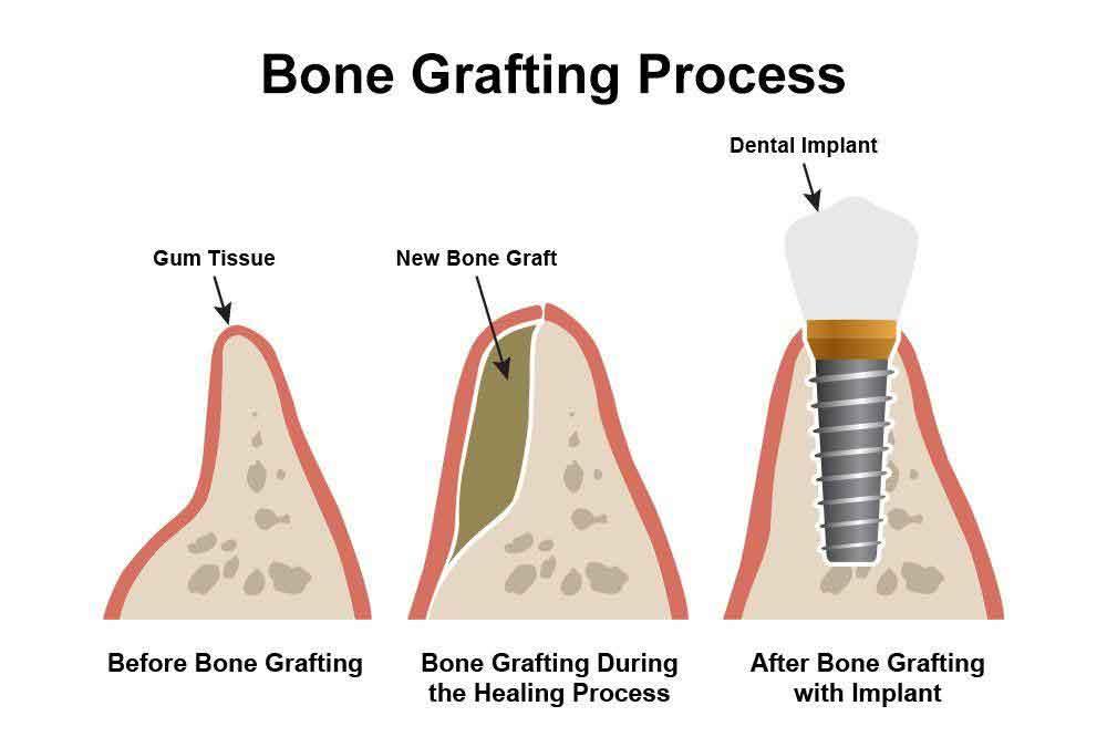 Diagram of bone grafting process in Scottsdale, AZ