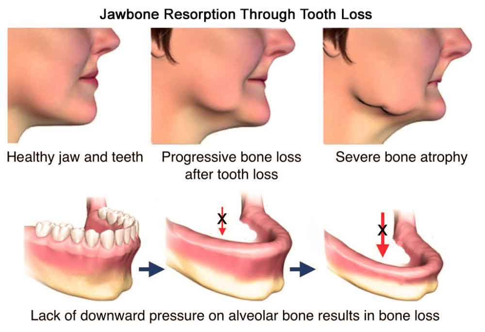 Graphic of Jaw Resorption at our Scottsdale, AZ