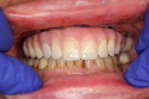 Close up of implant supported dentures