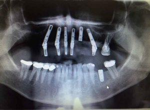 Dental X-Ray Taken at Scottsdale Dental Solutions in 85254