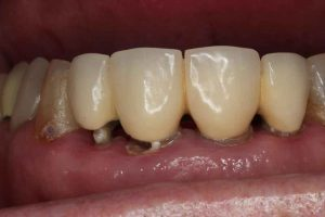 Teeth with bad tooth decay