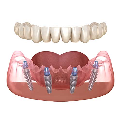All On Four dental implants model showing patients how they work