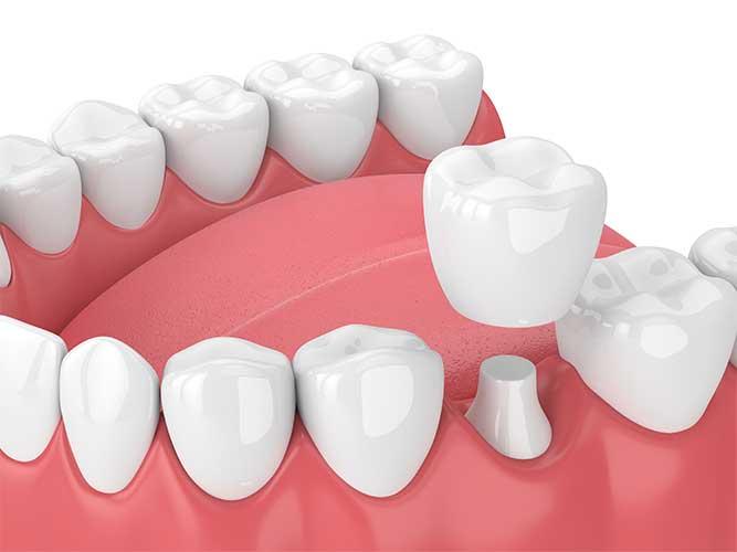 restorative dentistry crown