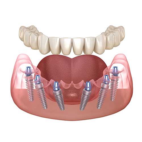 Full Arch Dental Implants expanded view
