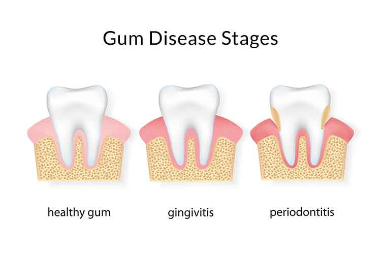 stages of  periodontal gum disease illustrated
