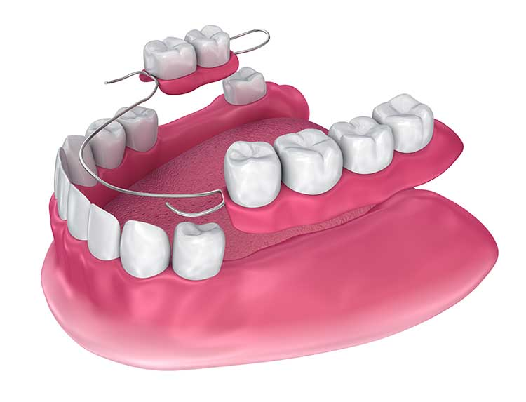 custom-made partial dentures oral appliance