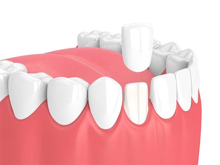 tooth with porcelain veneers