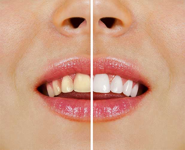 Professional Teeth Whitening before and after patient results