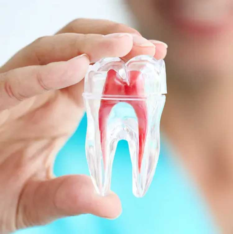 tooth showing roots and root canal treatment