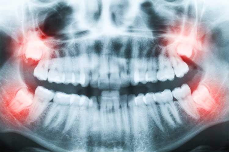Tooth Extractions xray