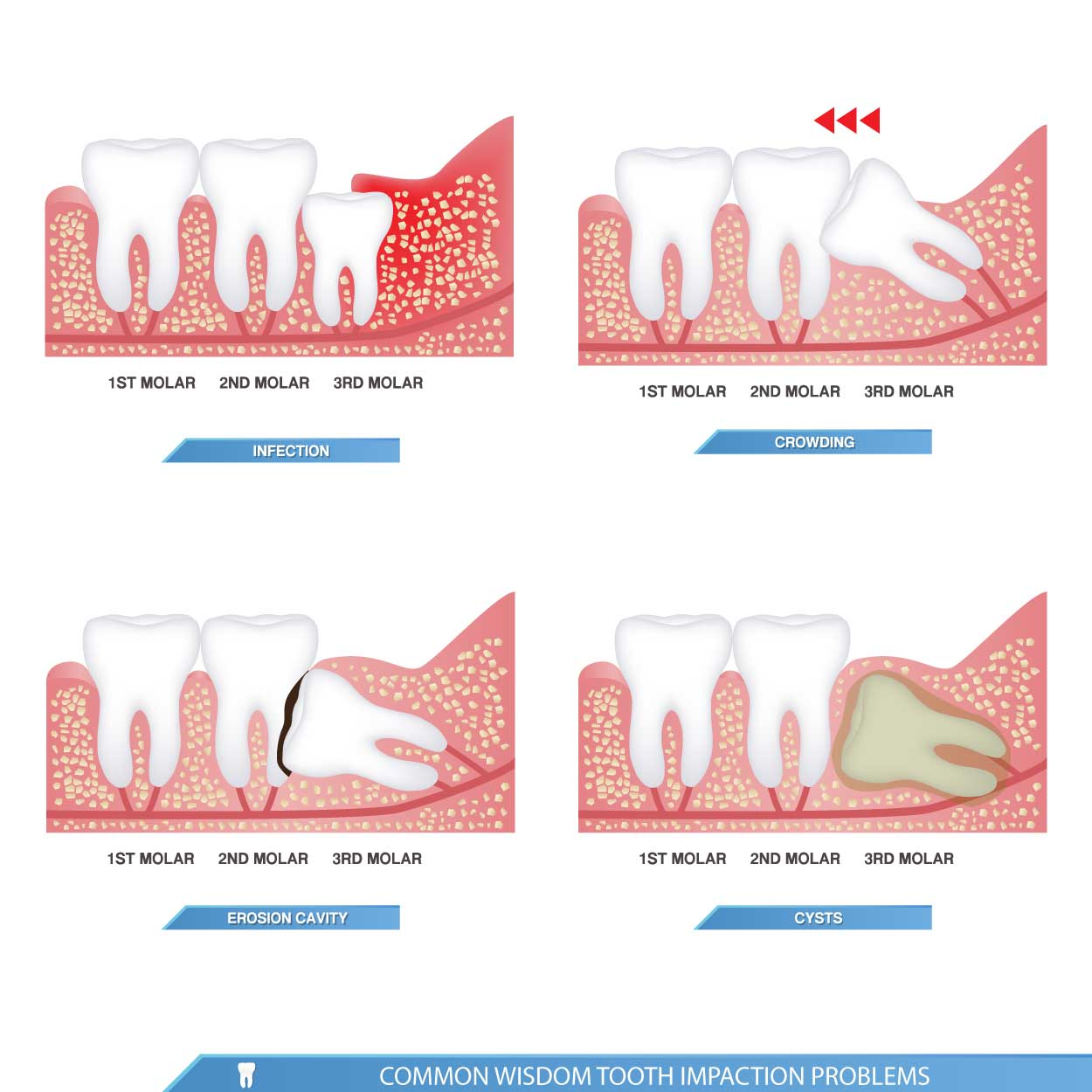 impacted tooth types
