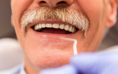 Teeth in a Day How One Day Dental Implants Really Work